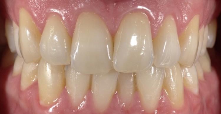 Fotokurs mit Wolfgang Weisser im Hause Schlee-Dental